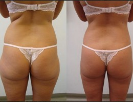 mage-rumpe-midje-hofter-rygg