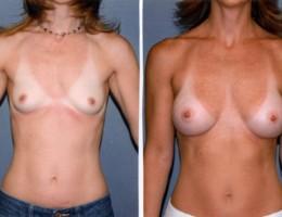 runde-bak-brystmuskelen