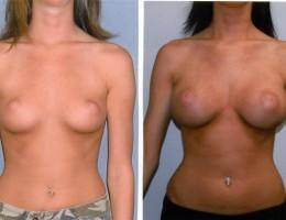 runde-brystimplantat-bak