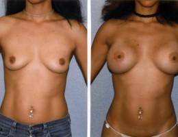runde-brystimplantat-hoy-profil