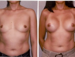 runde-brystimplantat-submuskular1
