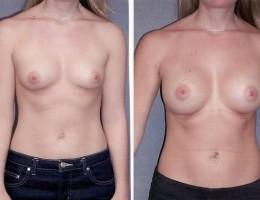runde-brystimplantat-submuskular2