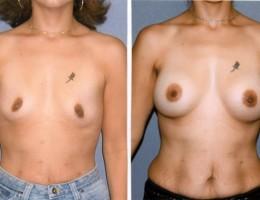 runde-brystimplantat-submuskular3