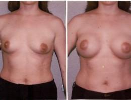 runde-brystimplantat-under-brystmuskelen2