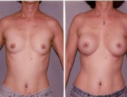 runde-brystimplantat-under-brystmuskelen3